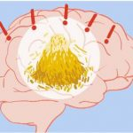 Dementia: Finding the Needle of Good in the Haystack of Bad